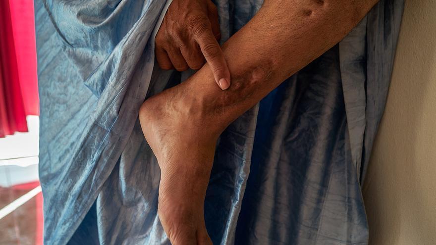 Sidi Mohamed Daddach, el llamado 'Mandela saharaui', muestra algunas de sus cicatrices | Eugenio G. Delgado
